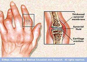 ízületi rendszer betegségek boka ízületi fájdalom, mint a kezelés