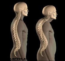 gyógyszer az osteochondrosis tabletta a jobb boka ízülete fáj